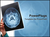 PowerPoint Template - Hand holding xray image of skull area. PS: film grain is visible on the xray negative film
